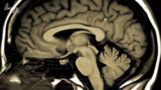 Watch Now: How 3D printed brain implants are changing health, and more of today's top videos